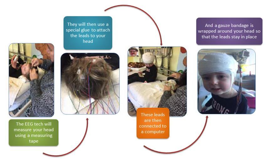 Electroencephalogram (EEG) | LHSC