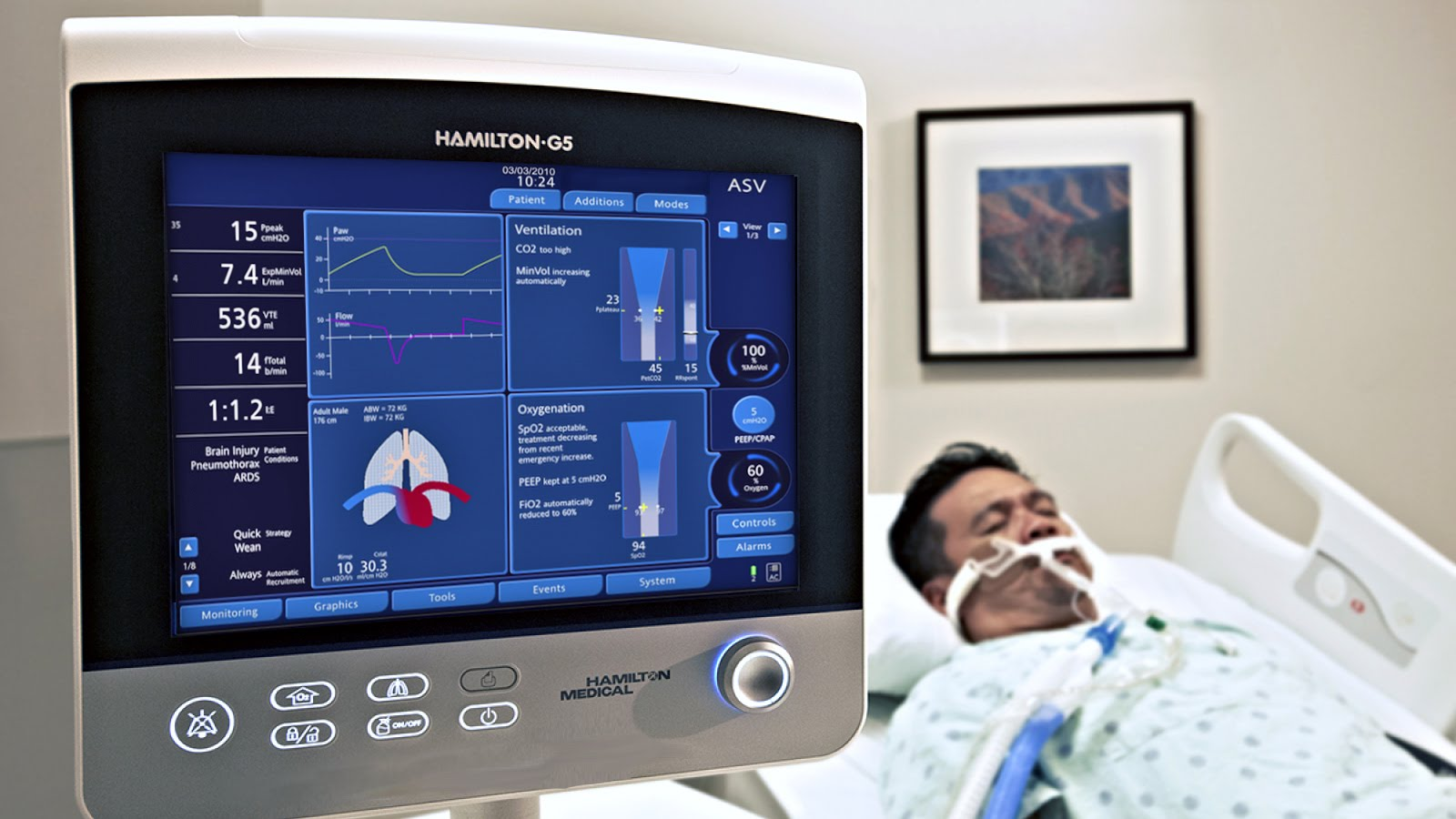 Mechanical Ventilator | LHSC