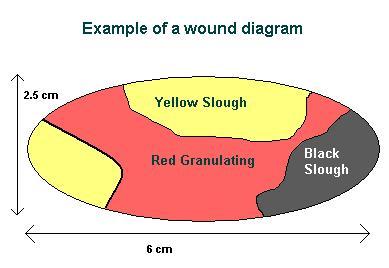 wound rotor motor wiring diagram wound healing diagram
