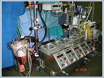 heart: Heart Lung Machine Function