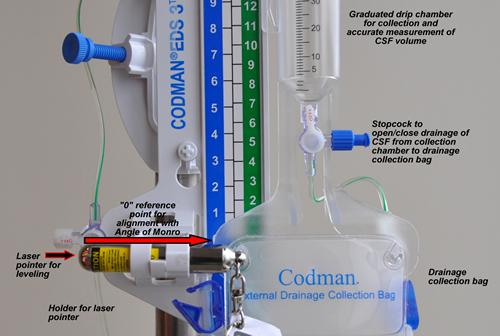 SETUP AND USE OF CODMAN DRAINAGE UNIT FOR LUMBAR ICP