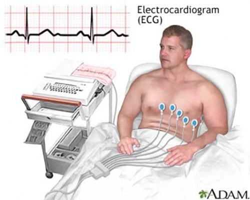 Електрокардиограми (ЕКГ)