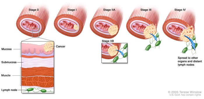 Esophageal Cancer Staging