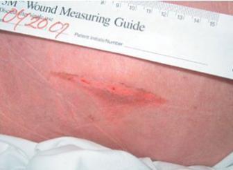 Pressure Ulcer Chart Lhsc